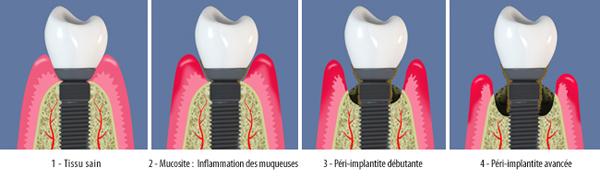 peri-implantite-bandeau